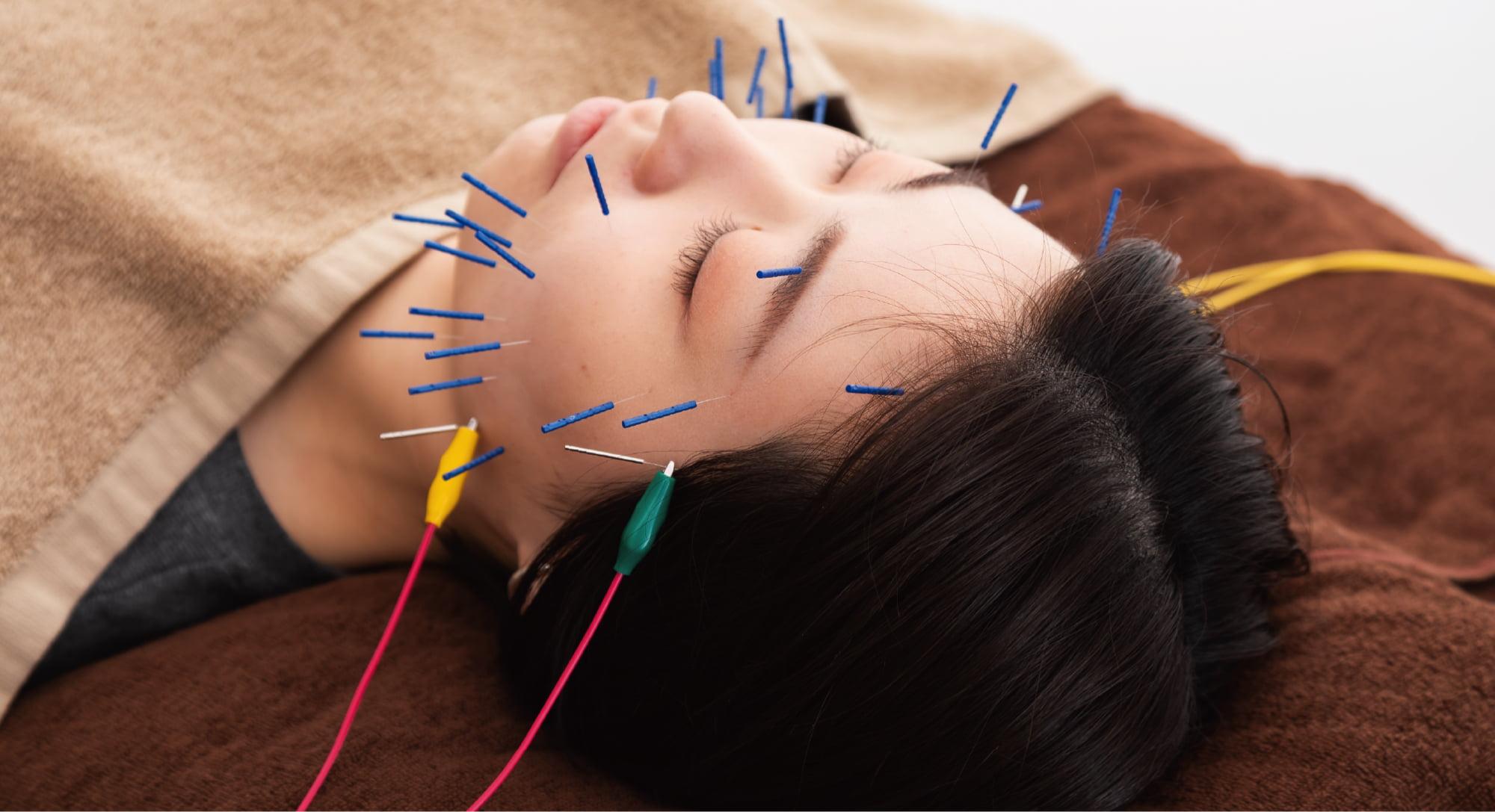 予約制少人数制の美容鍼灸・鍼灸治療サロン ハリッシュ